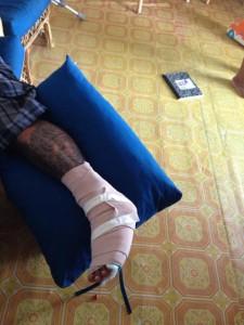 48 Luis Alamilla Broken Toes