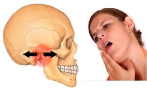 Health Corner Temporomandibular Joint Disorder Tmj The San Pedro Sun